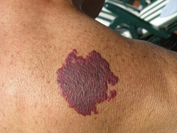 When to Consider Birthmark Removal