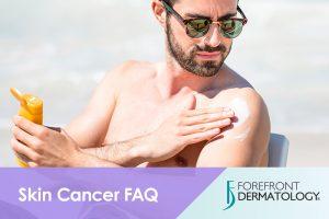 Skin Cancer FAQ