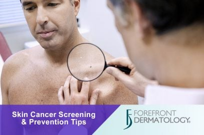 Free Skin Cancer Screening Event in Columbus, Indiana