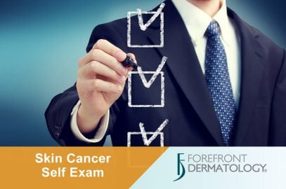 The 5 Most Important Steps to Protect Yourself from Skin Cancer