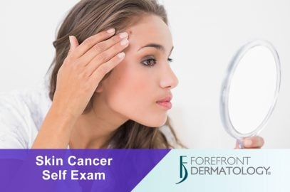 How to Perform a Monthly Skin Cancer Self-Examination
