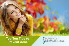 Stop Acne with These Preventative Tips
