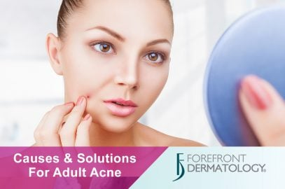 Causes and Solutions for Adult Acne