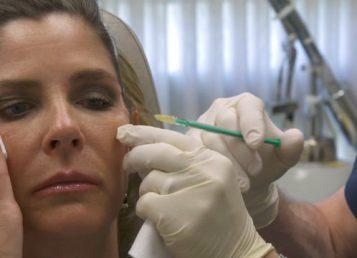 Dr.Kelleher – Botox