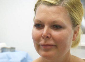 Dr.Kelleher – Neck Liposuction