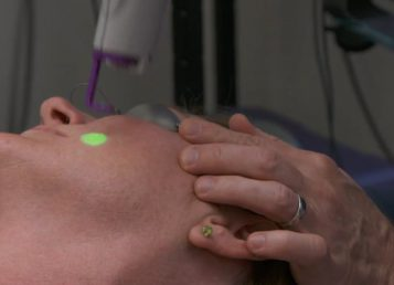 Dr.Kelleher – Multiple Laser Therapy