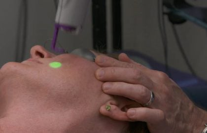 Dr.Matthew Kelleher on Multiple Laser Therapy