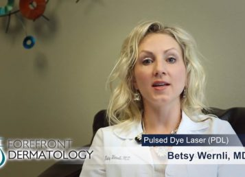 Dr. Betsy J. Wernli – Learn more about Pulsed Dye Laser
