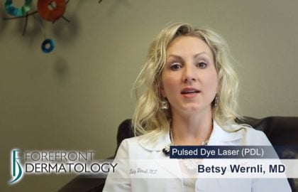 Dr. Betsy J. Wernli  on Pulsed Dye Laser