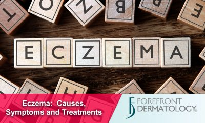 About Eczema: Causes and Symptoms