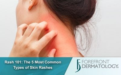 Rash 101: The 5 Most Common Types of Skin Rashes