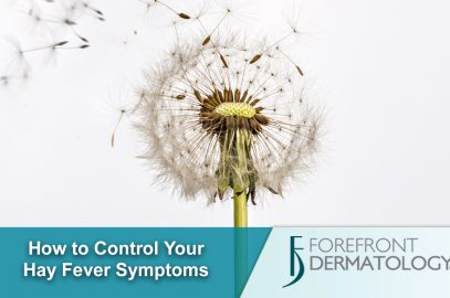 6 Tips to Help Control Your Hay Fever Symptoms