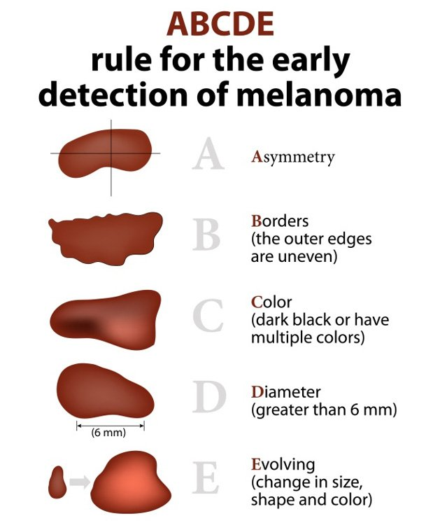 MELANOMA-DETECTION