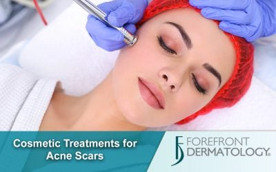 Cosmetic Treatments for Acne Scarring