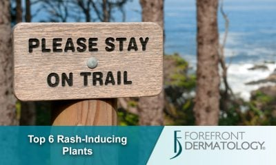 Top 6 Rash-inducing Plants