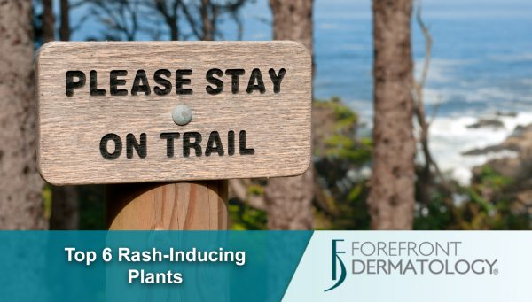 Top 6 Rash-inducing Plants