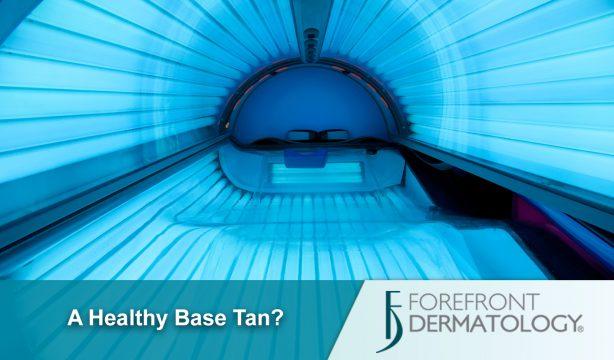 A Healthy Base Tan?
