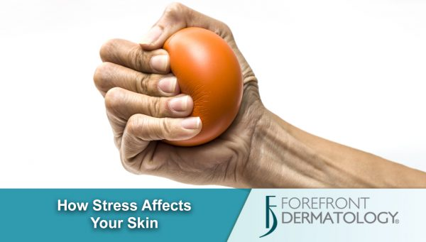The Stress Effect – How Stress Impacts Skin Health