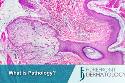 I was charged for Pathology services – what is that?