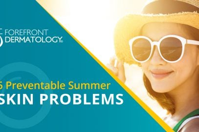 5 Preventable Summer Skin Problems