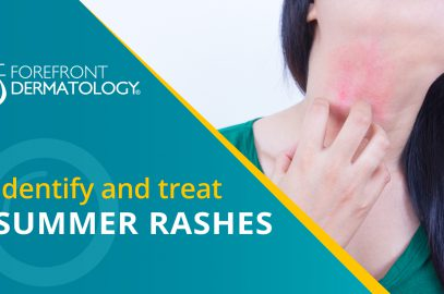 How to Identify and Treat Summer Skin Rashes