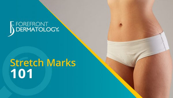 Stretch Marks 101