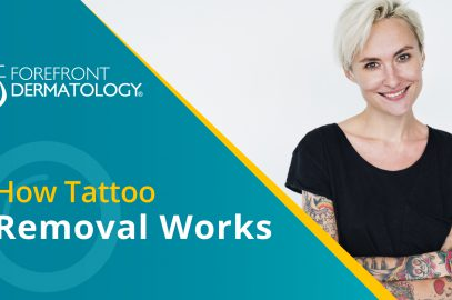 How Tattoo Removal Works
