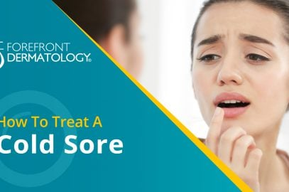 How to Treat a Cold Sore