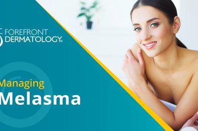 Managing Melasma