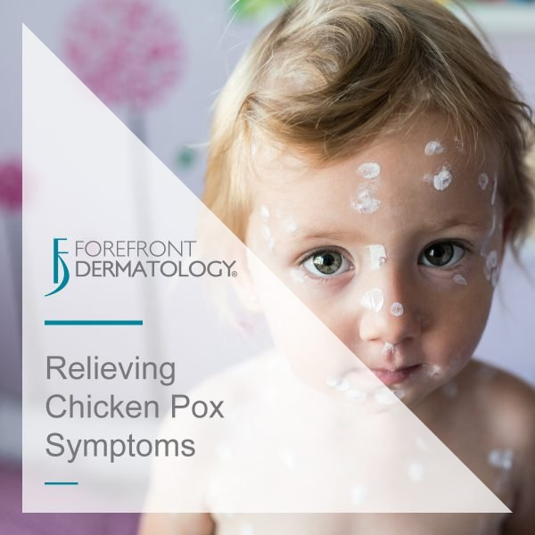 Relieving Chicken Pox Symptoms