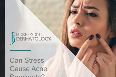 Does Stress Cause Acne?