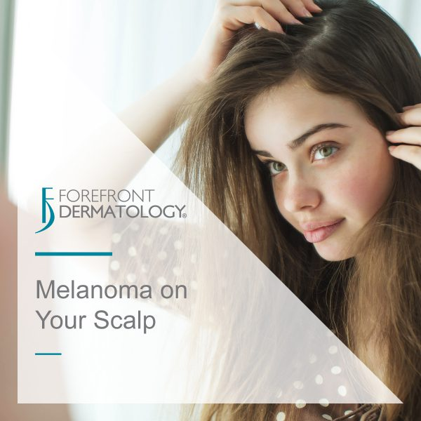 Scalp Melanomas: The Deadliest of All Melanomas