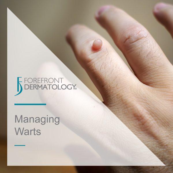 Managing Warts