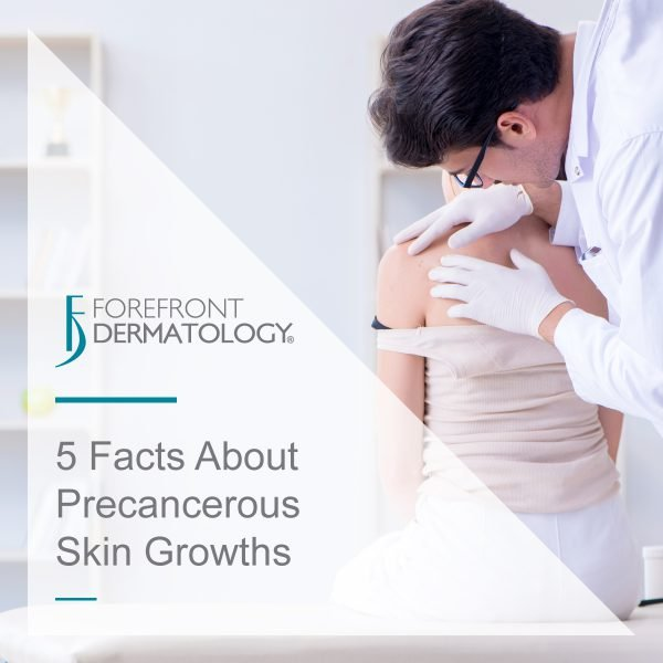 What You Should Know About Precancerous Skin Growths