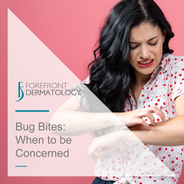 Bug Bites: When to be concerned