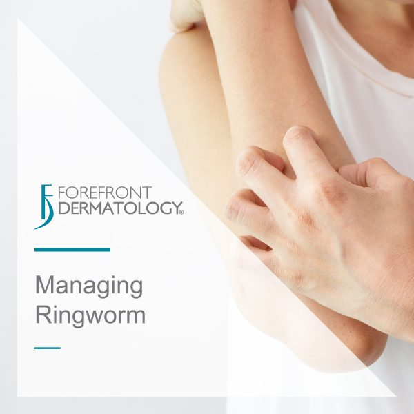 Managing Ringworm