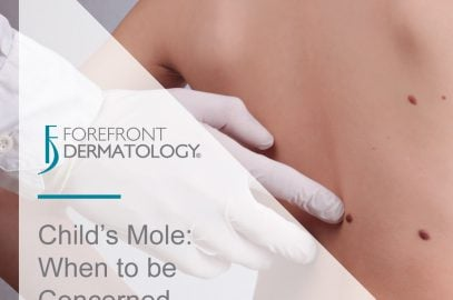 When to Be Concerned About a Child's Mole