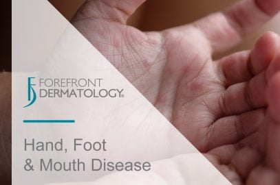 Hand, Foot and Mouth Disease: What You Need to Know