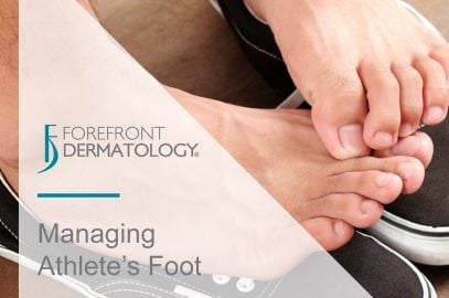 Managing Athlete's Foot