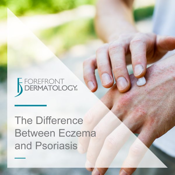 The Difference between Eczema and Psoriasis