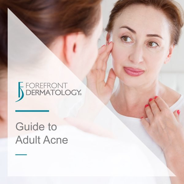 Guide to Adult Acne
