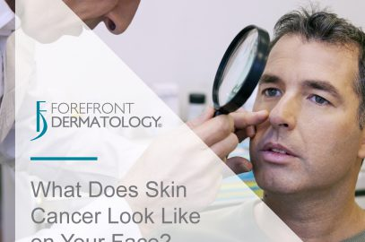 What Does Skin Cancer Look Like on Your Face?