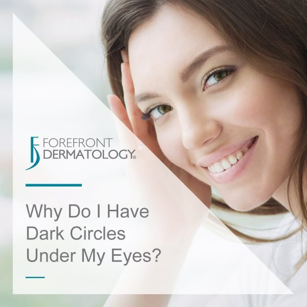 Why Do I Have Dark Circles Under My Eyes?