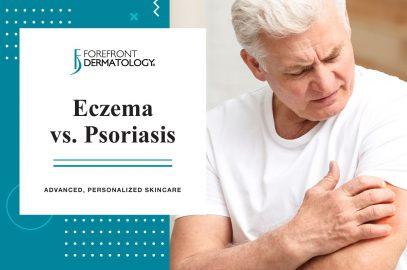Eczema Vs Psoriasis