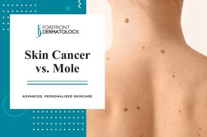 Skin Cancer Vs Mole