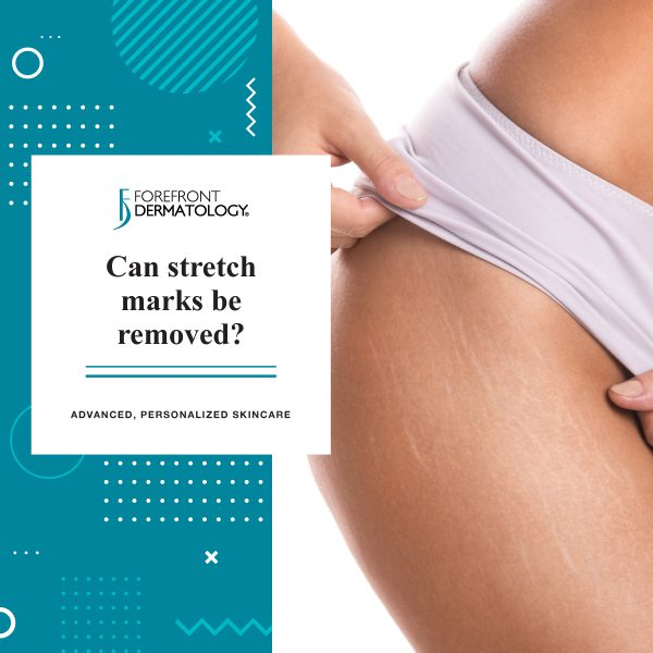 Can Stretch Marks Be Removed? | Forefront Dermatology