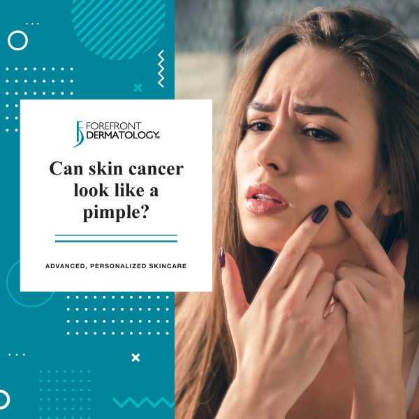 Can Skin Cancer Look like a Pimple? | Forefront Dermatology