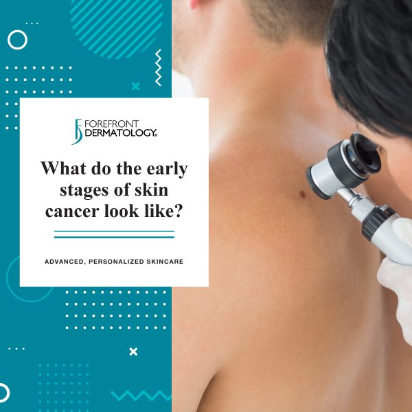 What Do The Early Stages of Skin Cancer Look Like? | Forefront Dermatology