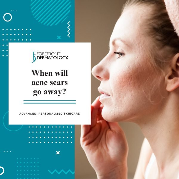 When Will Acne Scars Go Away?