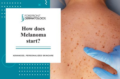How Does Melanoma Start?